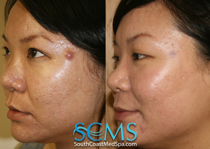 Laser Acne Scar Removal Enjoy A Noticeable Difference Without Any Risk Laser Hair Removal